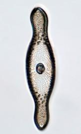 Rutilaria philippinarum Cleve & Grove, 1891